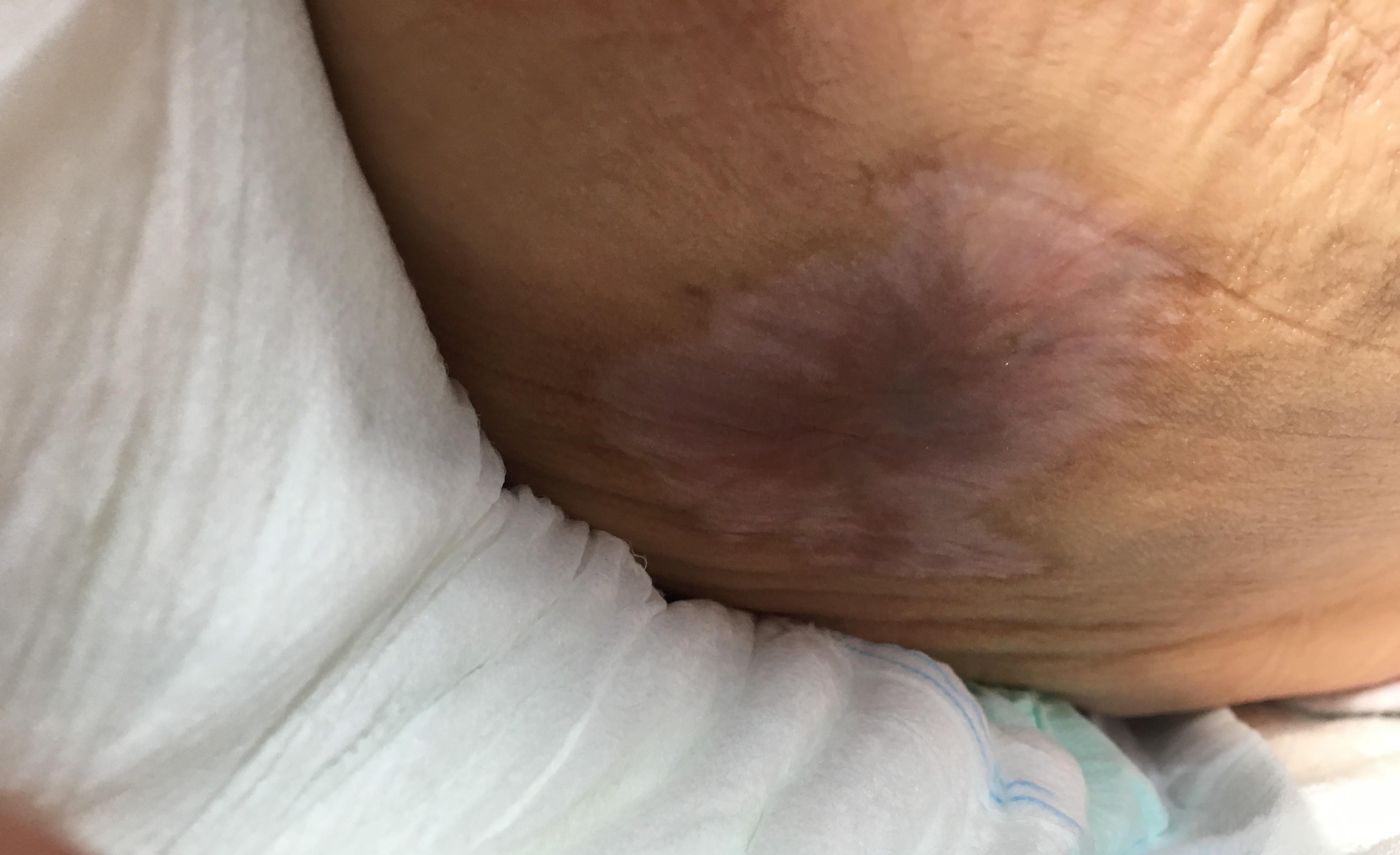 臀部褥瘡(床ずれ)治癒