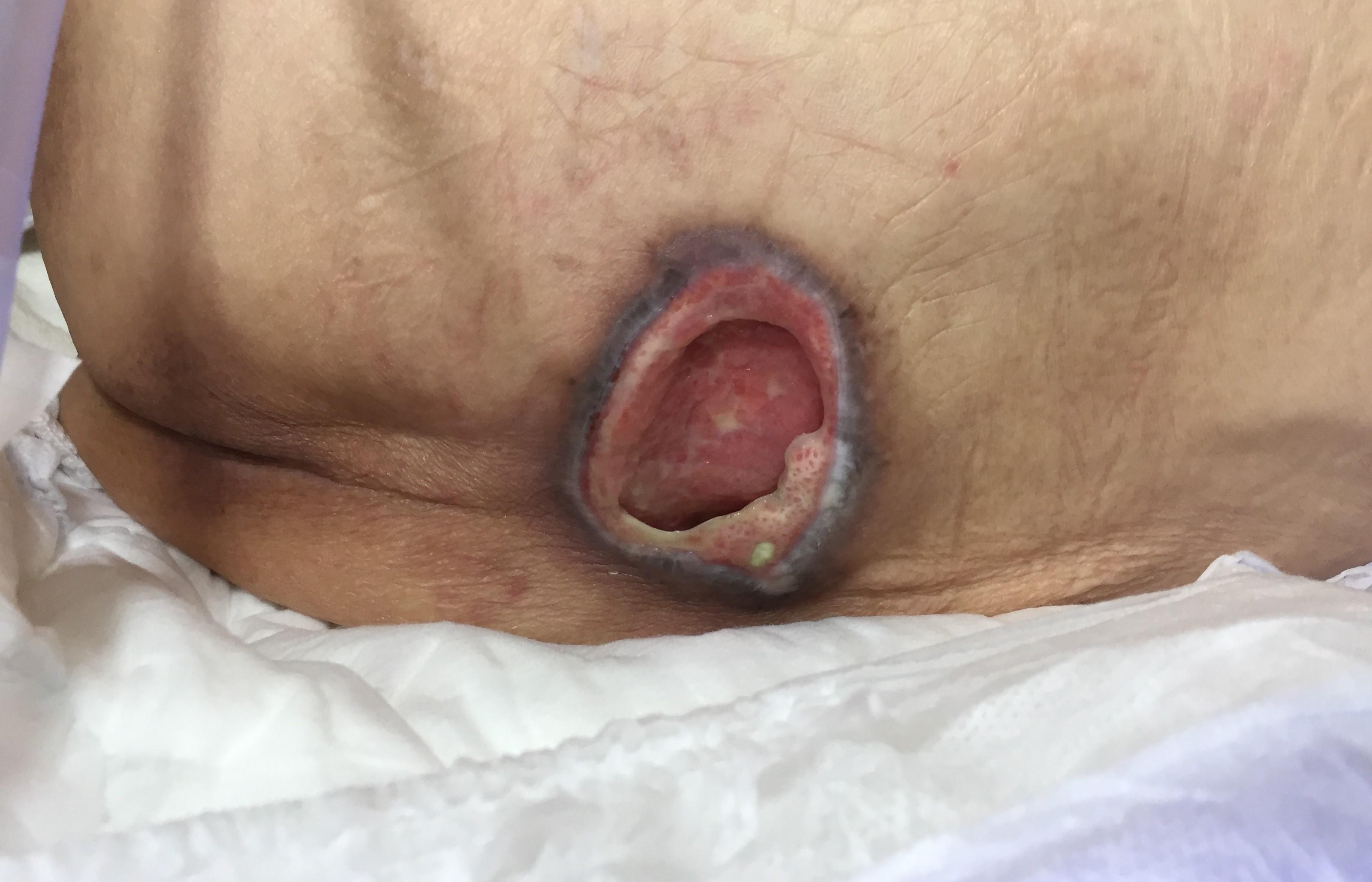 臀部褥瘡(床ずれ)治療前